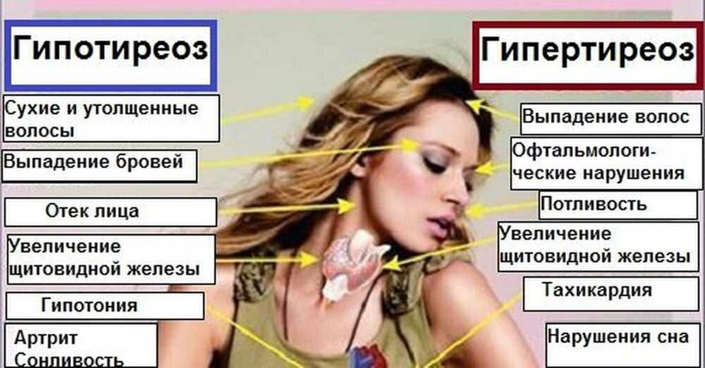 Тиреотоксикоз у женщин: характерные симптомы, методы лечения и препараты | здорова и красива