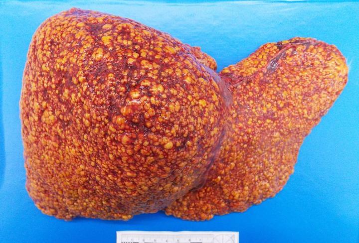 Сколько живут с циррозом печени: прогноз жизни