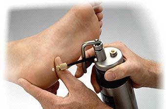 Шипица: фото, что такое шипица, что делать если расковыряла, лечение, как выглядит