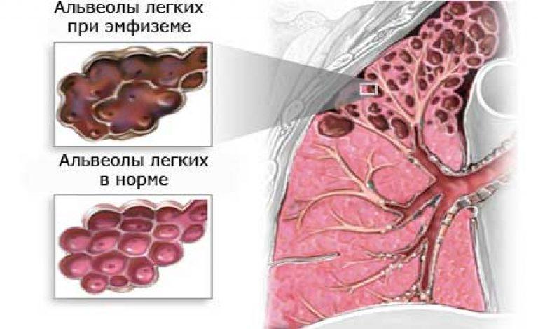 Буллезная болезнь легких. буллы лёгких