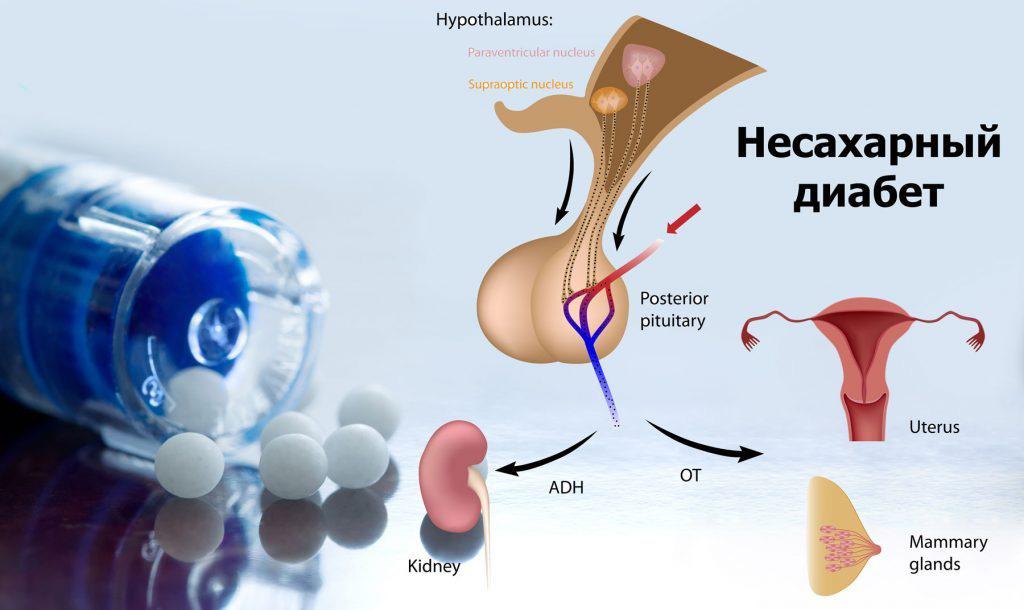 Несахарный диабет ⋆ центральный несахарный диабет. посттравматический несахарный диабет