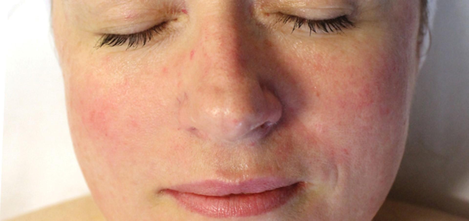 Розацеа (розовые угри). причины, диагностика и лечение патологии :: polismed.com