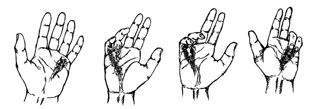 Контрактура суставов: причины, виды, способы терапии