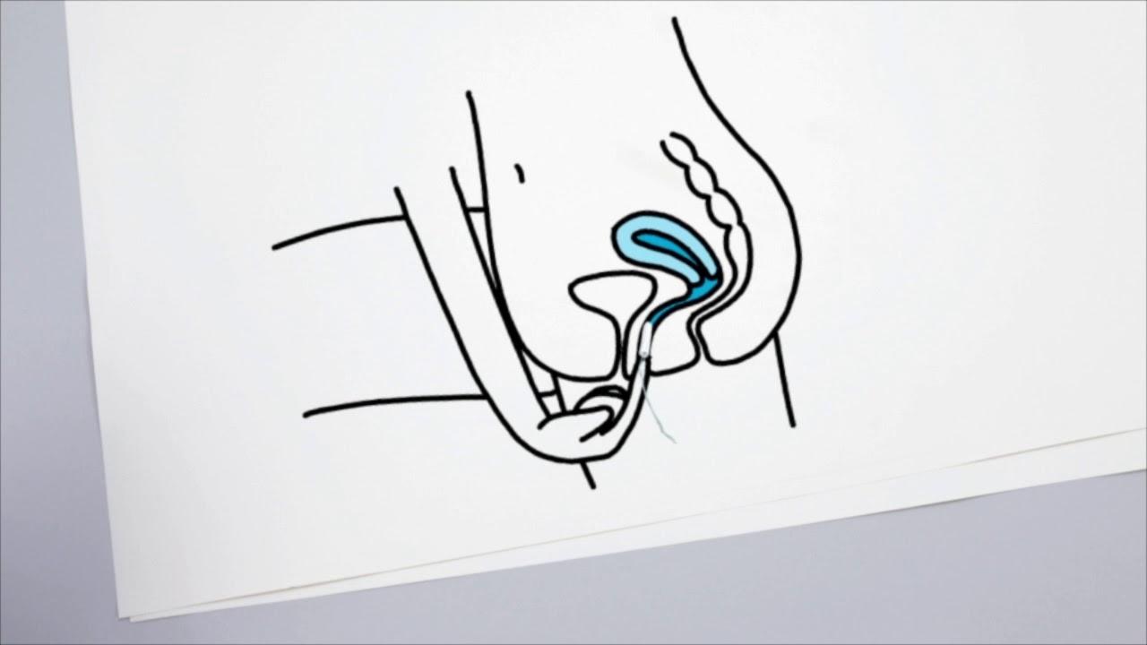 Тампоны чем опасны. как правильно использовать тампоны | здоровье человека