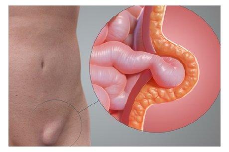 Паховая область: анатомия, возможные заболевания и их лечение. паховая грыжа