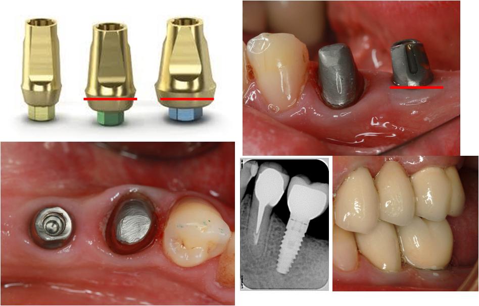 Абатмент в стоматологии: что это такое и для чего используется при имплантации?
