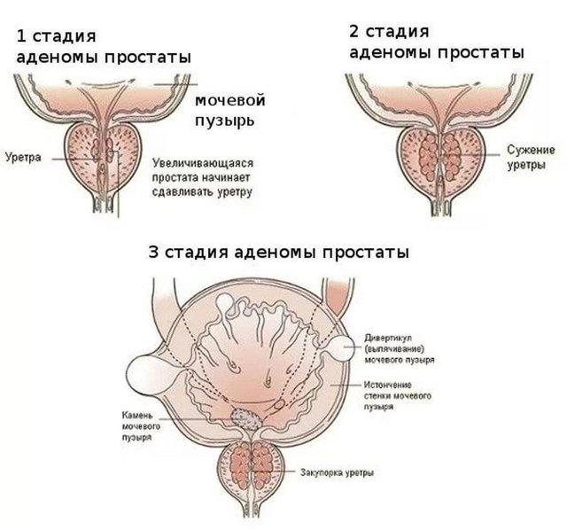 Гиперплазия предстательной железы: что это такое, причины, симптомы, как лечить | s-voi.ru