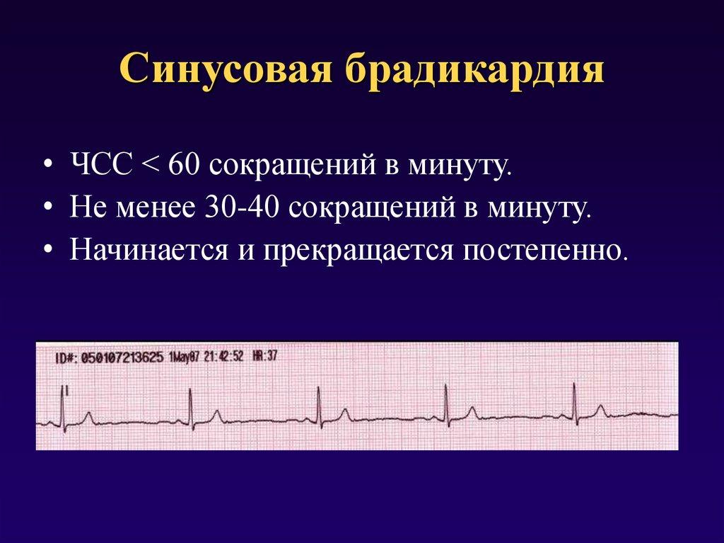 Синусовая брадикардия сердца: что это такое у взрослых, код по мкб-10, виды