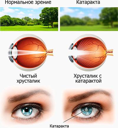Сколько стоит лечение катаракты