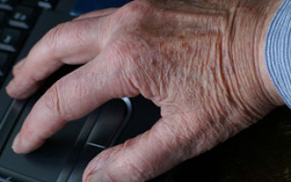 Симптомы переутомления у взрослых лечение. нервное перенапряжение симптомы и лечение какие симптомы при переутомлении организма