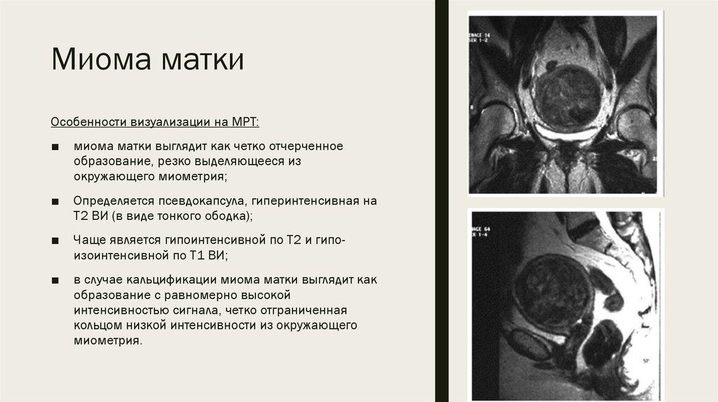 Миома матки — википедия с видео // wiki 2