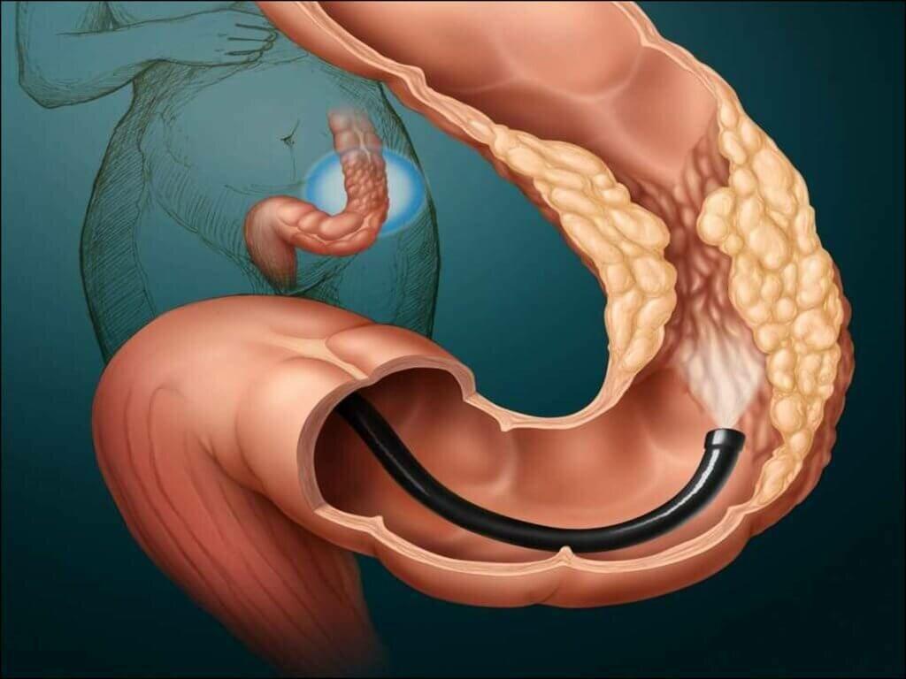 Что такое ирригография кишечника у взрослых и детей: как проводится обследование, как подготовиться к процедуре и чем отличается от ирригоскопии и колоноскопии