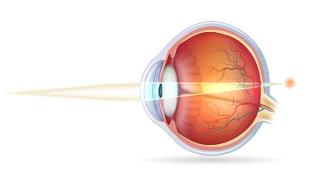 Близорукость и дальнозоркость одновременно: причины сочетанной патологии, симптомы, методы лечения, очки для коррекции патологии