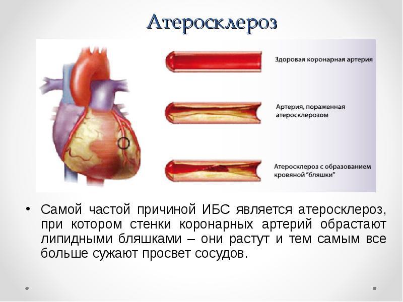 Симптомы, диагностика и лечение атеросклероза сосудов