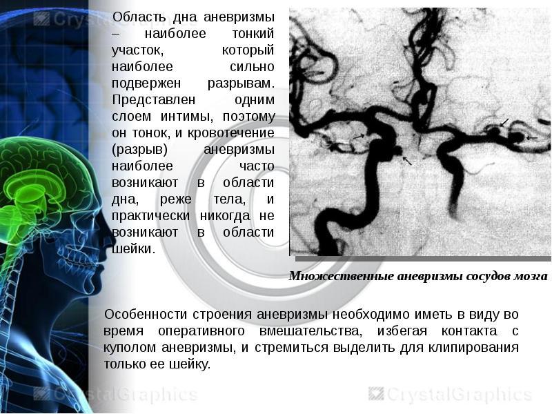 Лечениеаневризмы сосудов головного мозга: операция по удалению