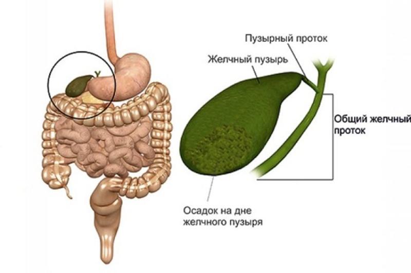 Муть в желчном пузыре. билиарный сладж – что это такое? основными этапами такого лечения являются.