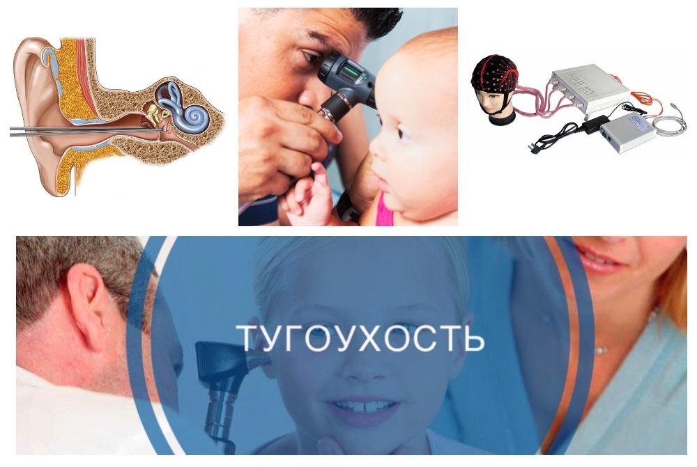 Тугоухость 2 степени – лечение у взрослых: восстановится ли слух