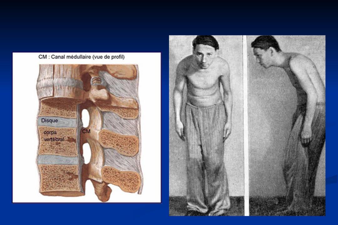 Как проявляется болезнь бехтерева у мужчин: симптомы, лечение, прогноз