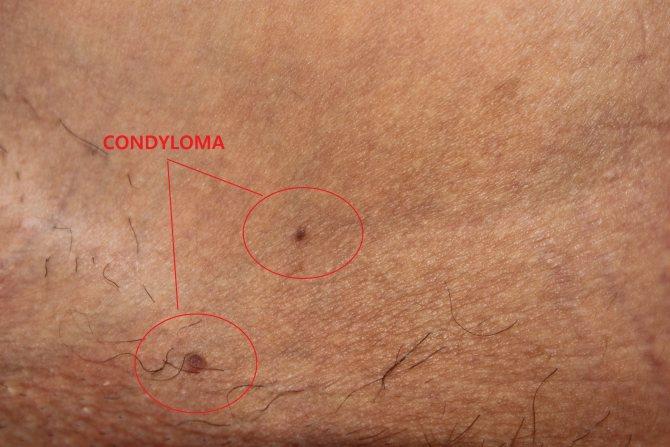 Аногенитальные бородавки или остроконечные кондиломы