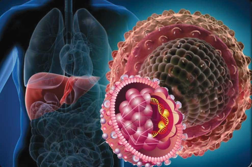 Гепатит с: симптомы, лечение, как передается гепатит с и что это такое?