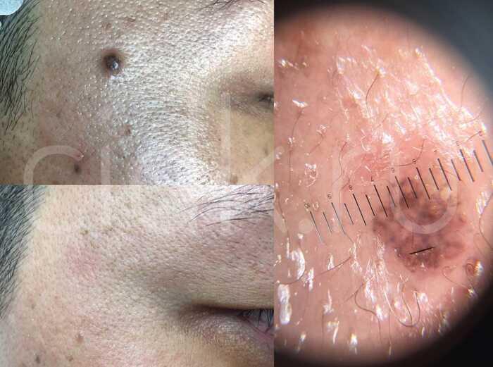 Пигментный невус: фото, формы, симптомы и лечение