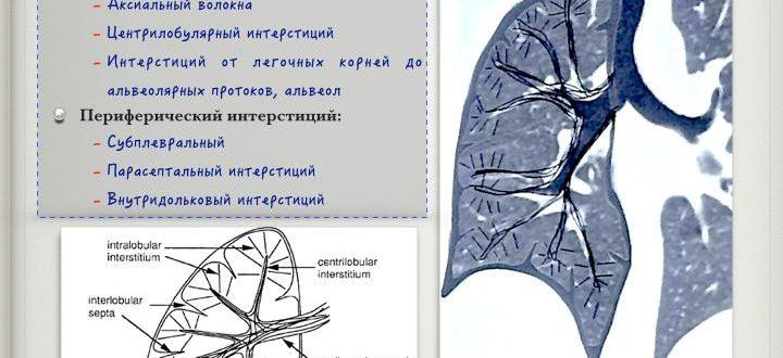 Интерстициальная пневмония: прогноз и методы лечения