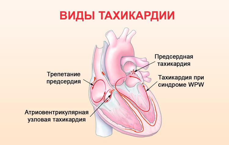 Что такое тахикардия? учащенное сердцебиение, наджелудочковая, желудочковая, пароксизмальная тахикардия – симптомы, лечение