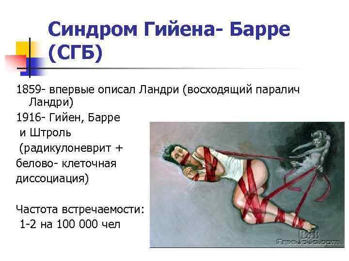 Синдром гийена барре: симптомы, диагностика и лечение
