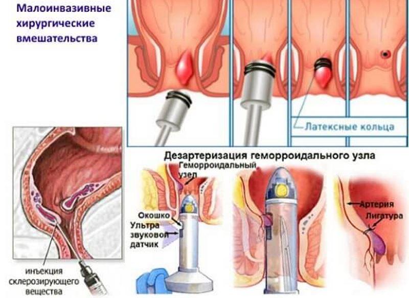 Геморрой – симптомы, лечение, фото.