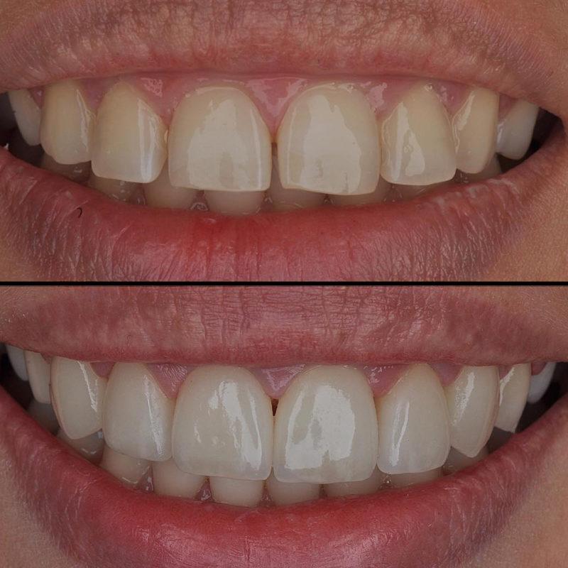 Съемные или временные виниры: что это и сколько носить - много зубов