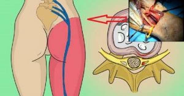 Ишиас: симптомы и лечение седалищного нерва