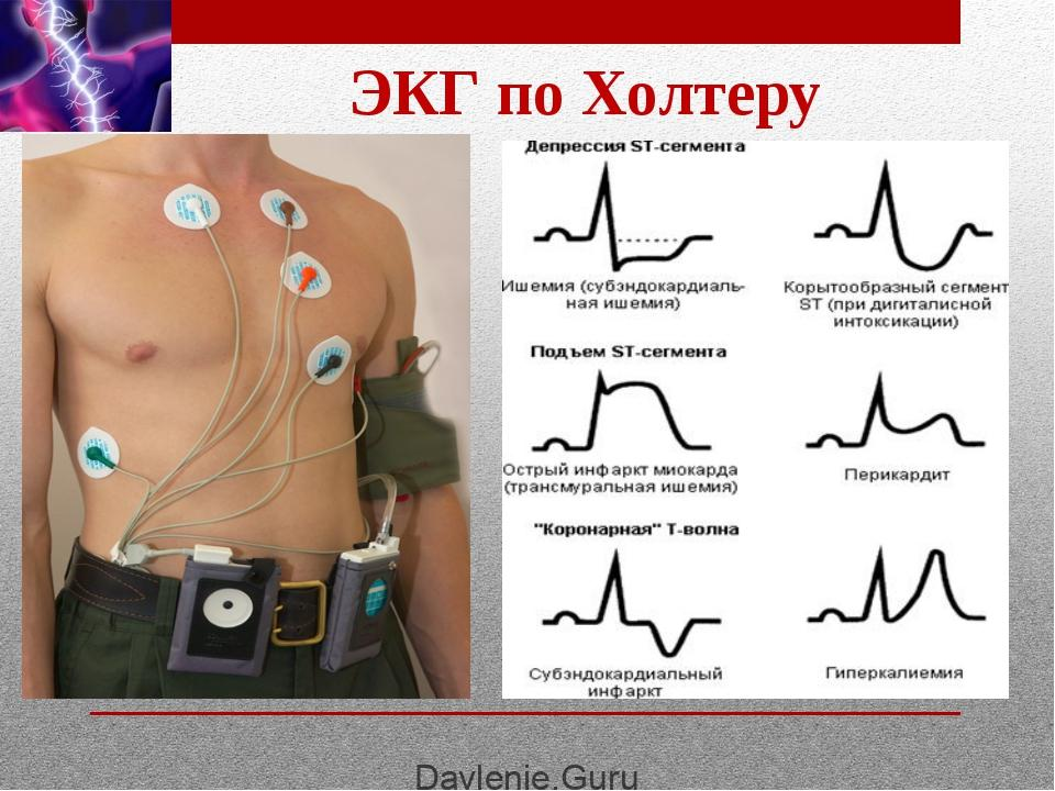 Холтер мониторинг сердца: подготовка, как проводится, правила для пациента