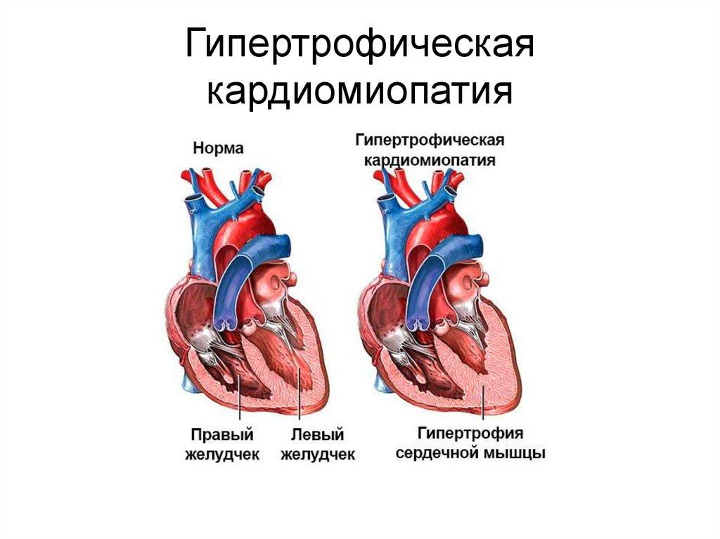 Кардиомегалия лечение