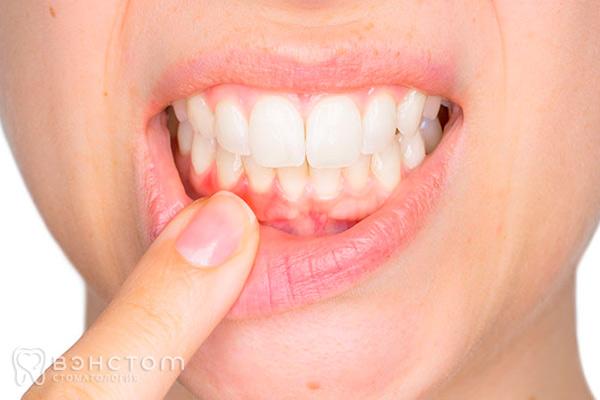 Пародонтоз десен и зубной: симптомы и лечение + 50 фото