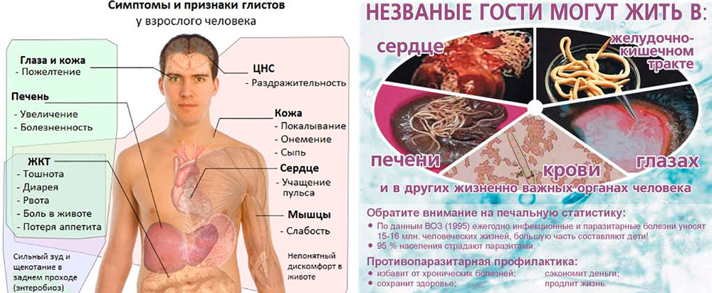 Признаки наличия глистов у человека, симптомы и диагностика