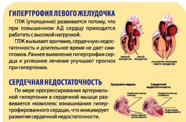 Кардиомегалия у человека: что это, причины болезни, лечение синдрома бычьего сердца