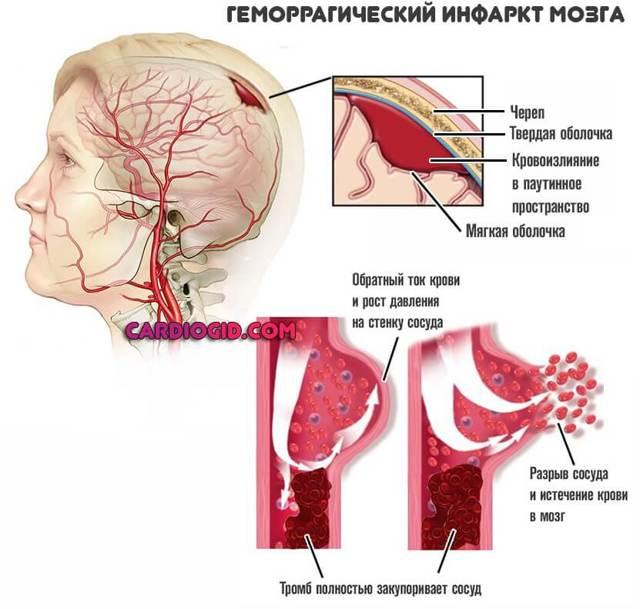 Чем грозит инсульт ствола головного мозга