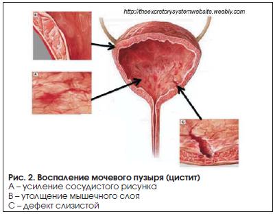 Воспаление мочевого пузыря: причины, диагностика и лечение