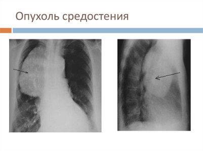 Тимома: лечение, прогноз, удаление и симптомы