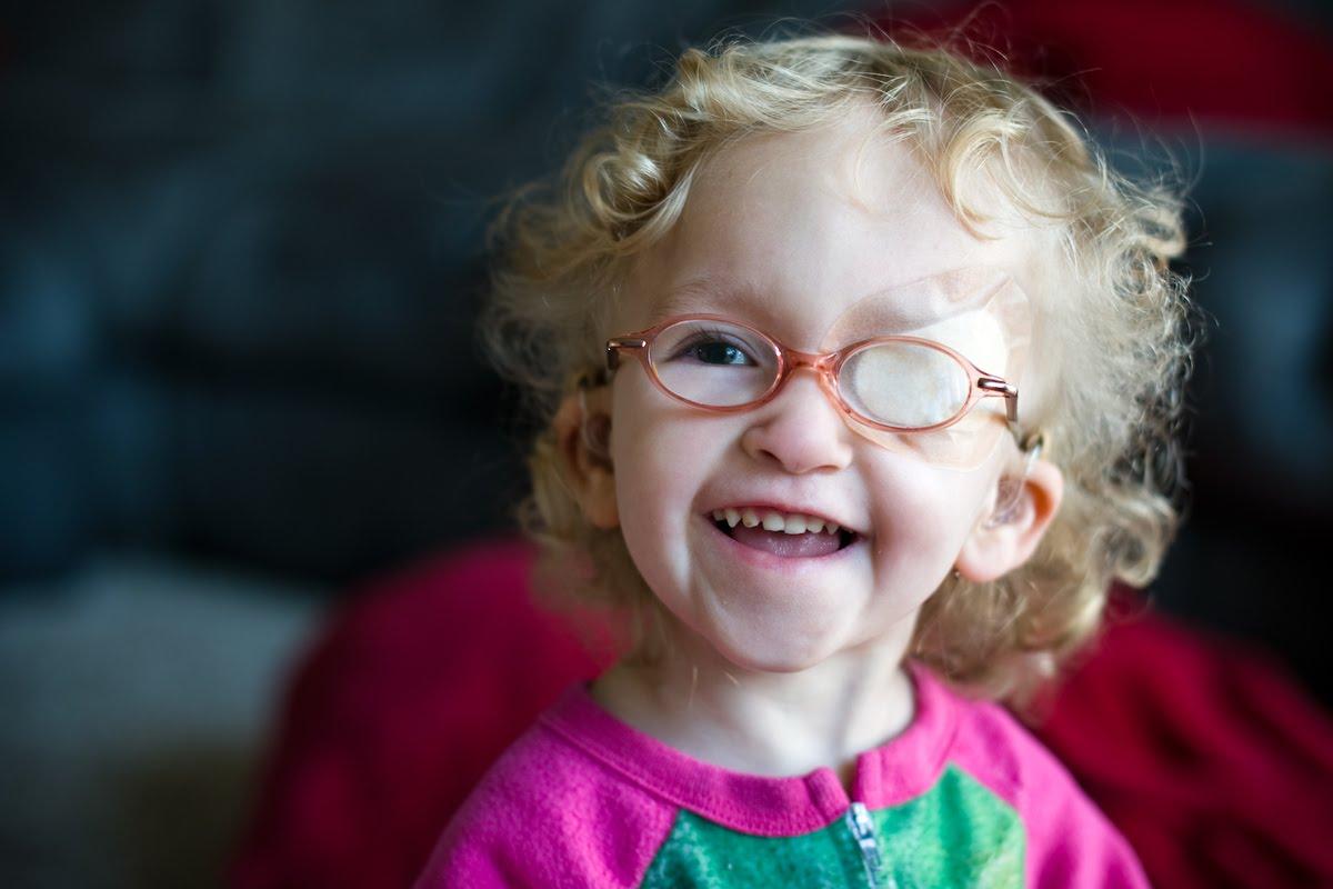 Амблиопия глаза: лечение у взрослых и детей синдрома ленивого глаза
