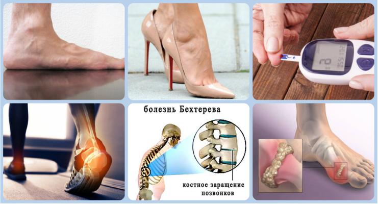 Пяточная шпора: симптомы и признаки