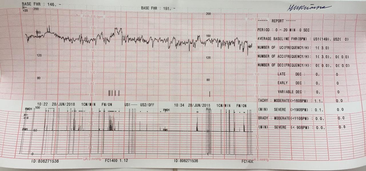 Псп при ктг: норма, расшифровка показателей, сроки диагностики