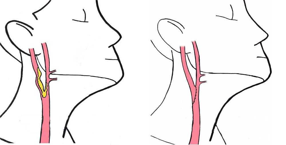 Дуплексное сканирование брахиоцефальных артерий: норма в таблице