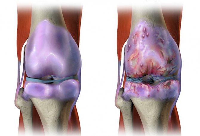 Гонартроз 2 степени коленного сустава: лечение, симптомы