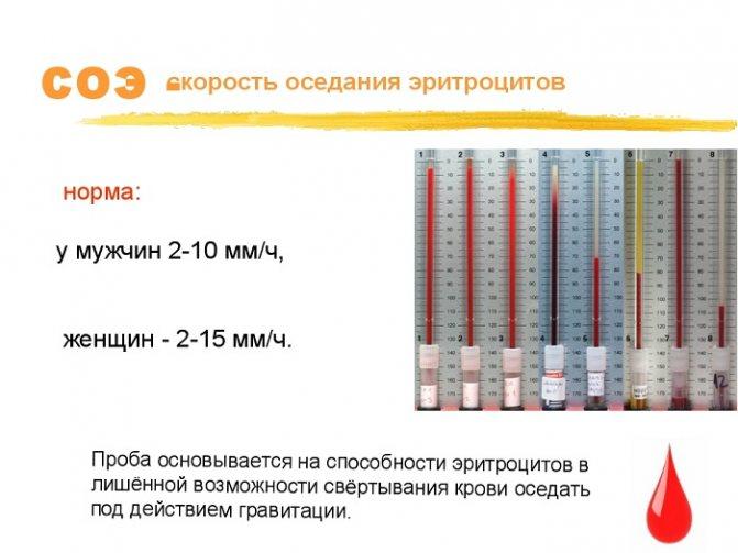 Соэ и нормы скорости оседания эритроцитов в крови у женщин и детей
