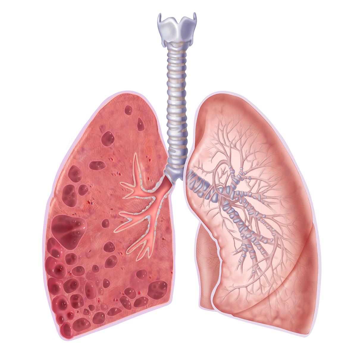 Пневмосклероз легких: склероз аорты, симптомы и лечение, а также что это такое?