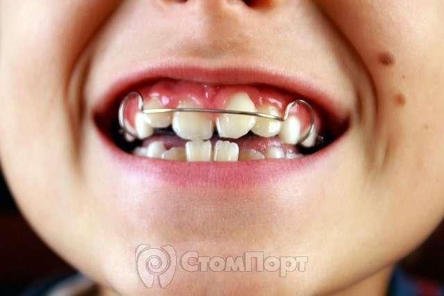 Что такое трейнер для исправления прикуса зубов? | брекетов.нет