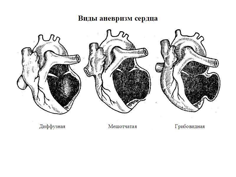 Аневризма сердца: что это такое, описание симптомов, лечение и прогноз