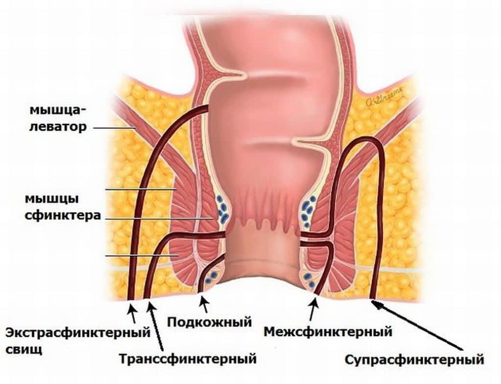 Парапроктит. причины, симптомы, признаки, диагностика и лечение патологии. :: polismed.com