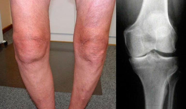 Гонартроз коленного сустава: симптомы и лечение, 1-ой, 2-ой, 3-ей степени